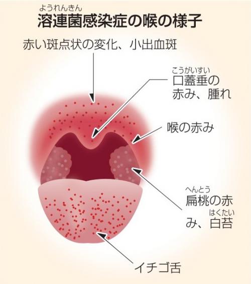 溶連菌 いちご 舌
